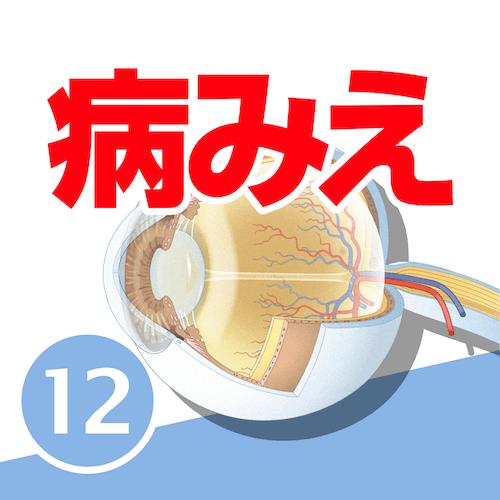 病気がみえるvol.12 眼科(第1版)