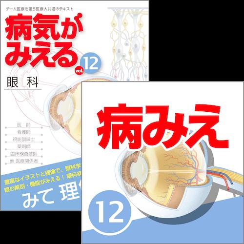 【医学生会員限定】病気がみえるvol.12 眼科(第1版)[書籍+アプリセット]