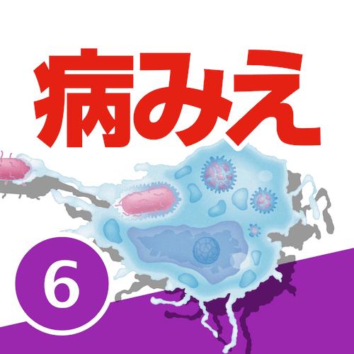 病気がみえるvol.6免疫・膠原病・感染症(第2版)
