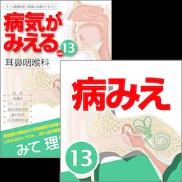 【医学生会員限定】病気がみえるvol.13 耳鼻咽喉科(第1版)[書籍+アプリセット]