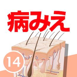 病気がみえるvol.14 皮膚科(第1版)
